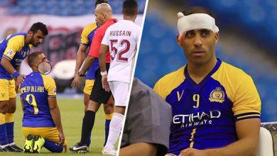 عبد الرزاق حمد الله يتعرض لإصابة بليغة على مستوى الرأس 6