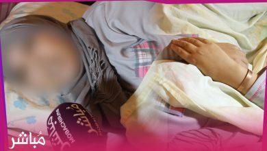 سيدة بالفنيدق تناشد المسؤولين بعد أن تسبب لها مركز للعلاج الكوري في الشلل 3
