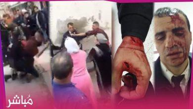 شرطي يتعرض لإعتداء بالسلاح الأبيض في تطوان بعد محاولته إيقاف مجرم اعترض سبيل التلاميذ 3