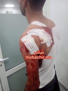 اعتداء وحشي على مواطن بدار الشاوي والدرك يعتقل الجاني 2