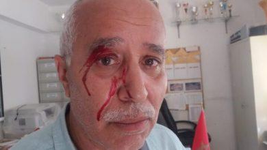 مديرية التعليم بطنجة تدين الإعتداء على مدير مدرسة من طرف أم تلميذ 3