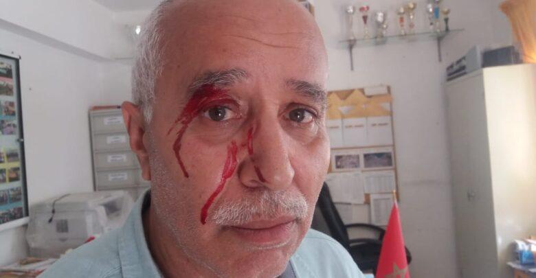 مديرية التعليم بطنجة تدين الإعتداء على مدير مدرسة من طرف أم تلميذ 1