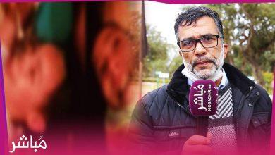توقيف أم عذبت طفلتها بالكيّ بمدينة العرائش وحقوقيون يتبنون الملف 1